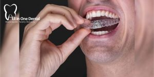 5 Amazing Benefits Of Getting Invisalign