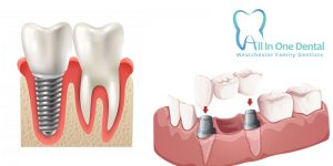 Dental Implants vs Crowns Which Is Better