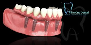 Why Replace Missing Teeth With Dental Implants