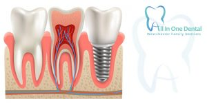 Wisdom Tooth Extractions:   Facts You Need To Know