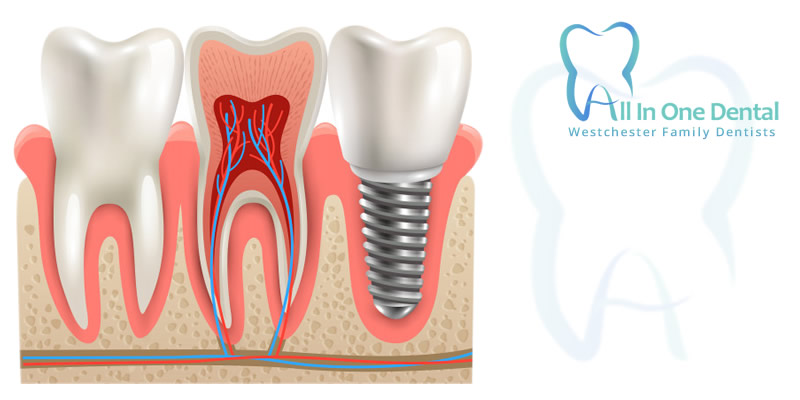 Wisdom Tooth Extractions 5 Facts You Need To Know All In One Dental Los Angeles California