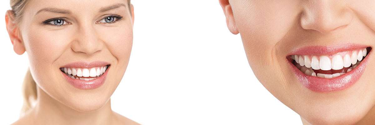 Los Angeles Cosmetic Dental Care