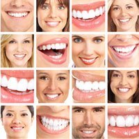 Dental Cosmetics