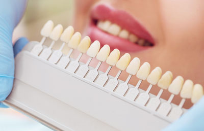How Your Cosmetic Dentist Uses Dental Veneers