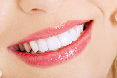 Does At Home Teeth Whitening Work?